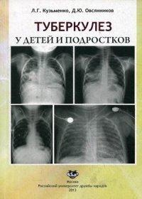 Туберкулез у детей и подростков. Учебное пособие