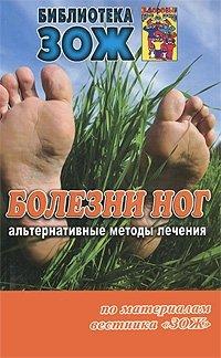 Болезни ног